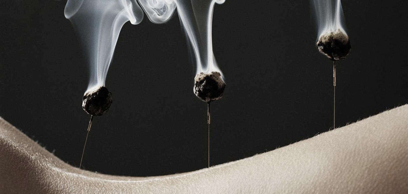 moxibustion-1